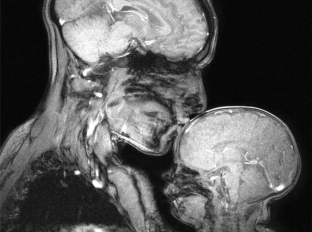 legatura mama copil RMN